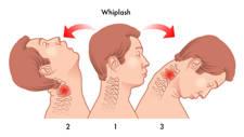 Latigazo cervical, origen del vértigo cervical