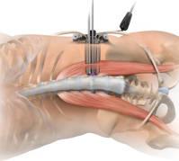 artrodesis vertebral xlif