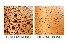 hueso osteoporótico