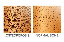 osteoporosis y dolor de espalda