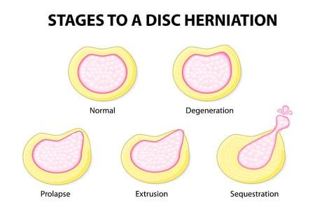Dolor de espalda alta y media por hernia discal