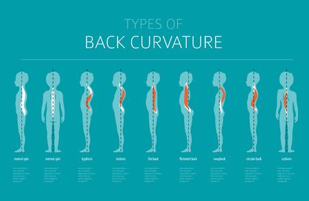 SCHEUERMANN curvas de la espalda en niños