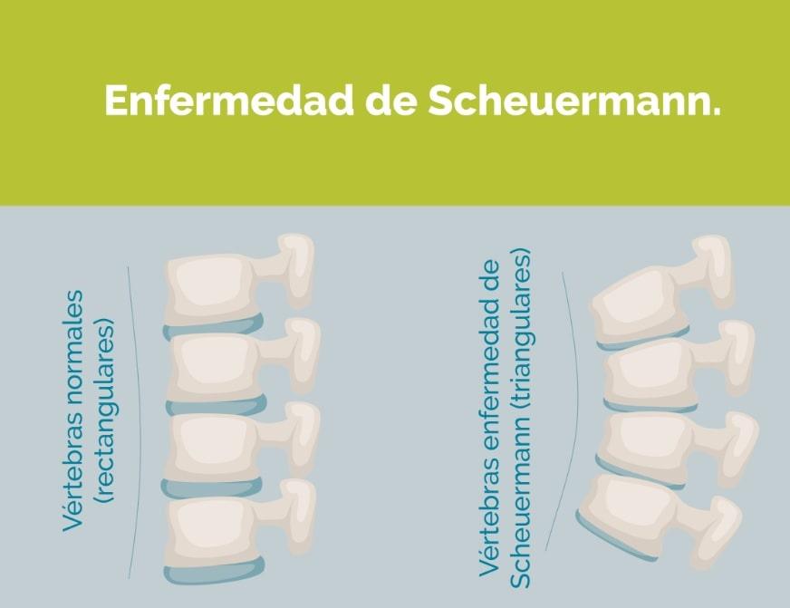 SCHEUERMANN vertebras acuñadas