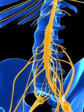 radiculopatia en paciente con escoliosis