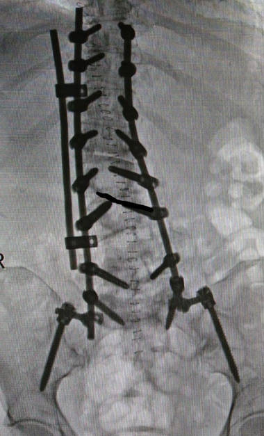 operación de escoliosis