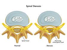 Diagnóstico de la estenosis de canal lumbar