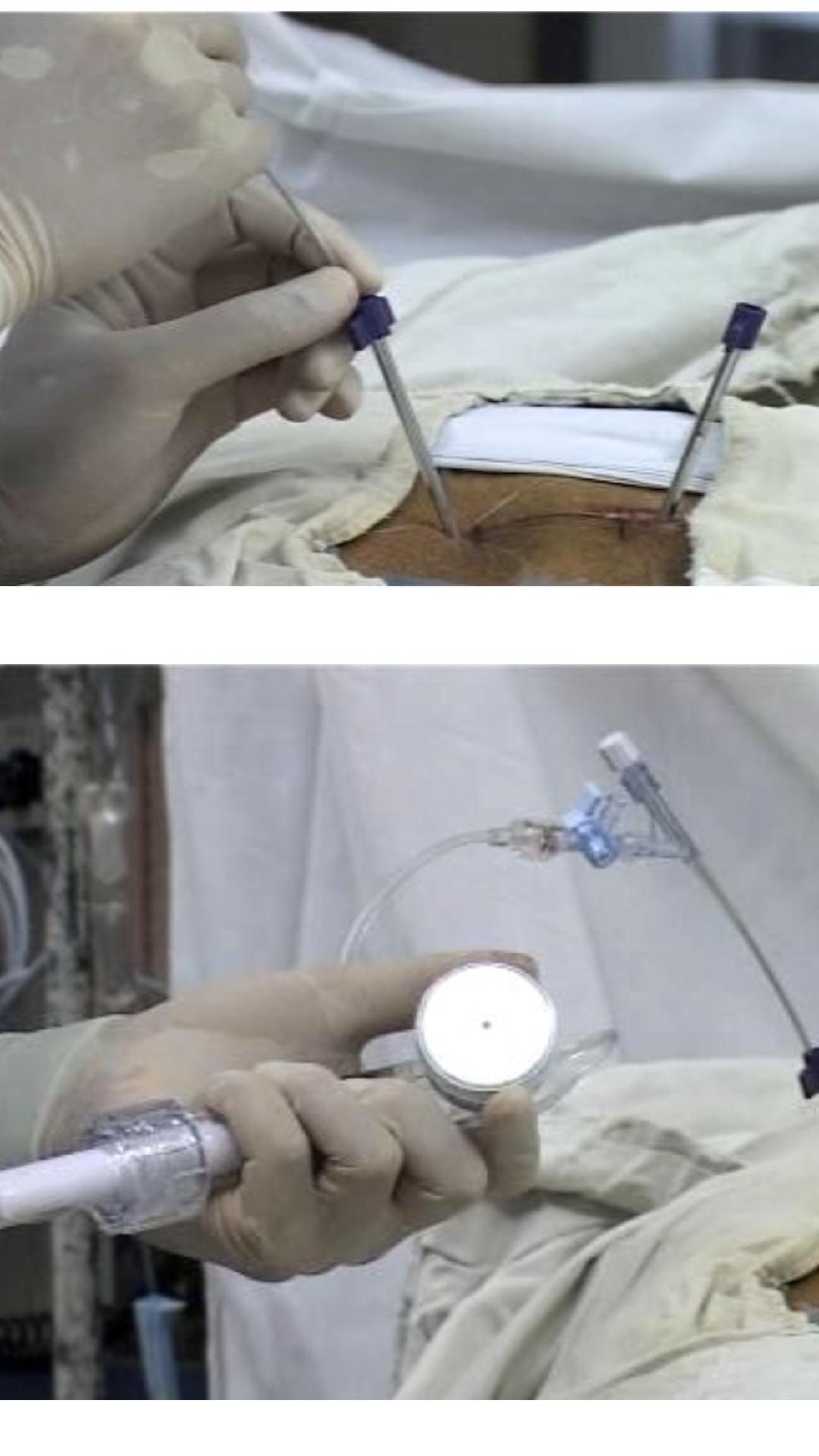 cifoplastia para el tratamineto de hemangiomas