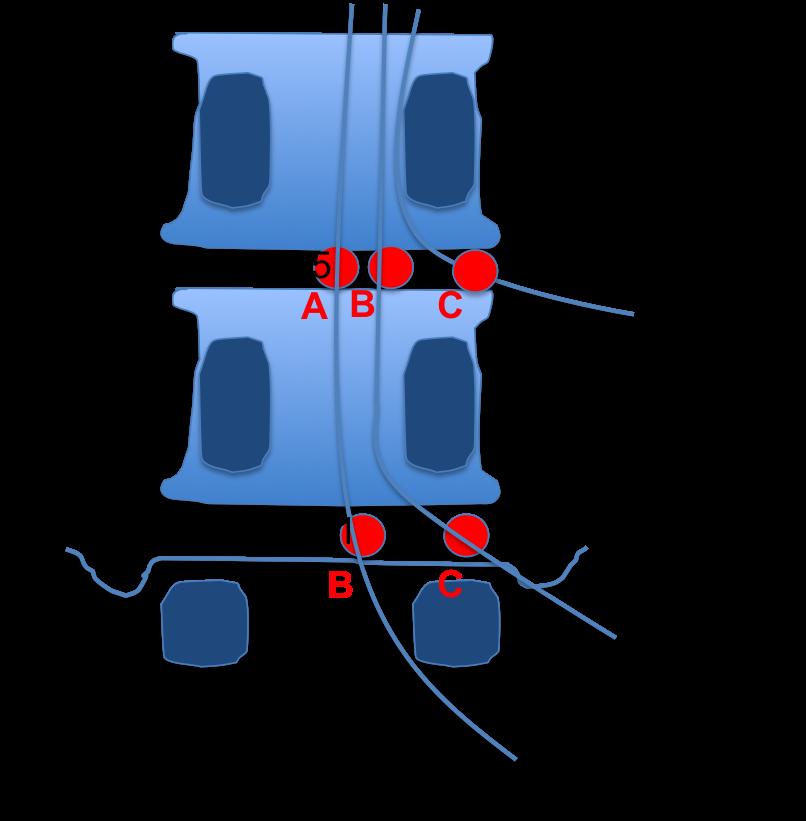 raiz lumbar saliente y raiz lumbar emergente