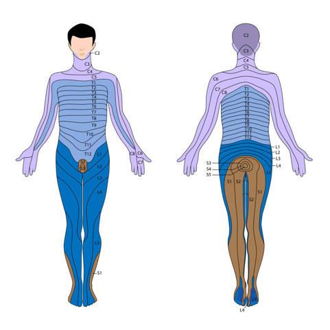 Hernia Discal L5 S1 Diagnóstico Síntomas Y Tratamiento
