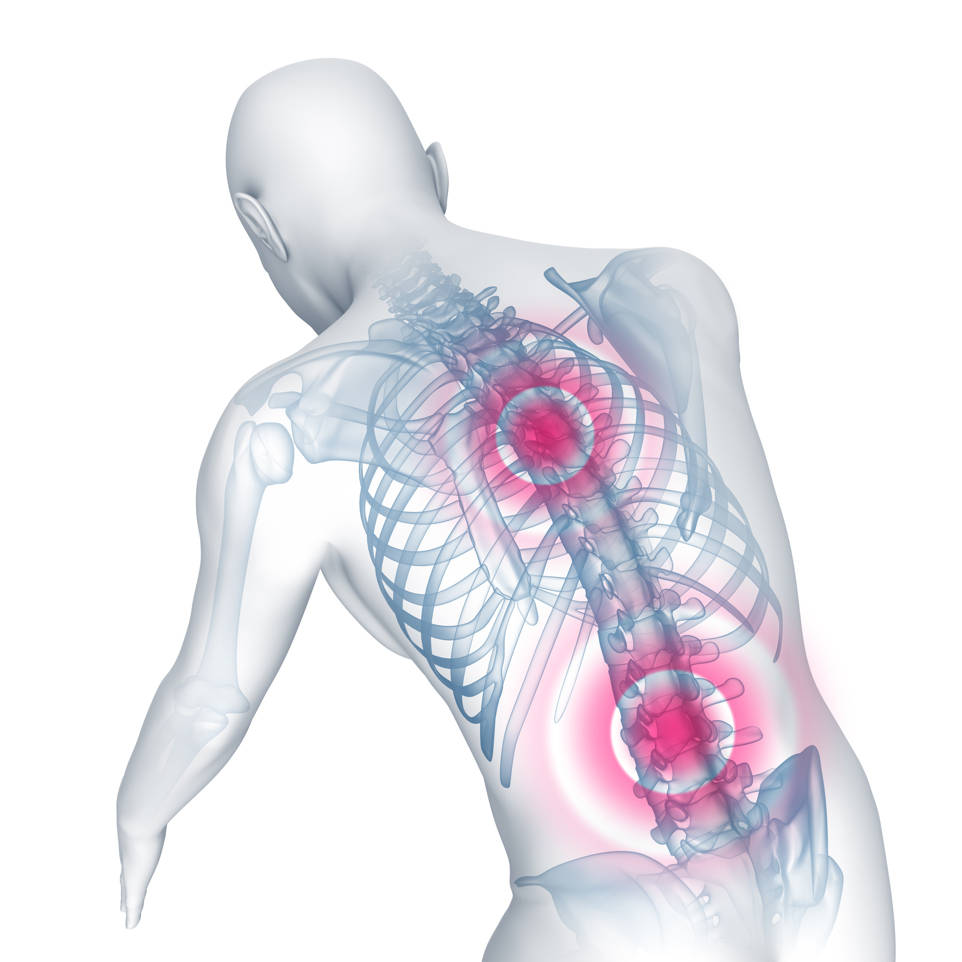 Síntomas articulares de la espondilitis anquilosante