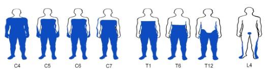 Síntomas de una lesión medular según el nivel