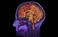 resonancia cerebral