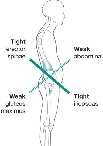 lumbago en corredores. musculatura afectada