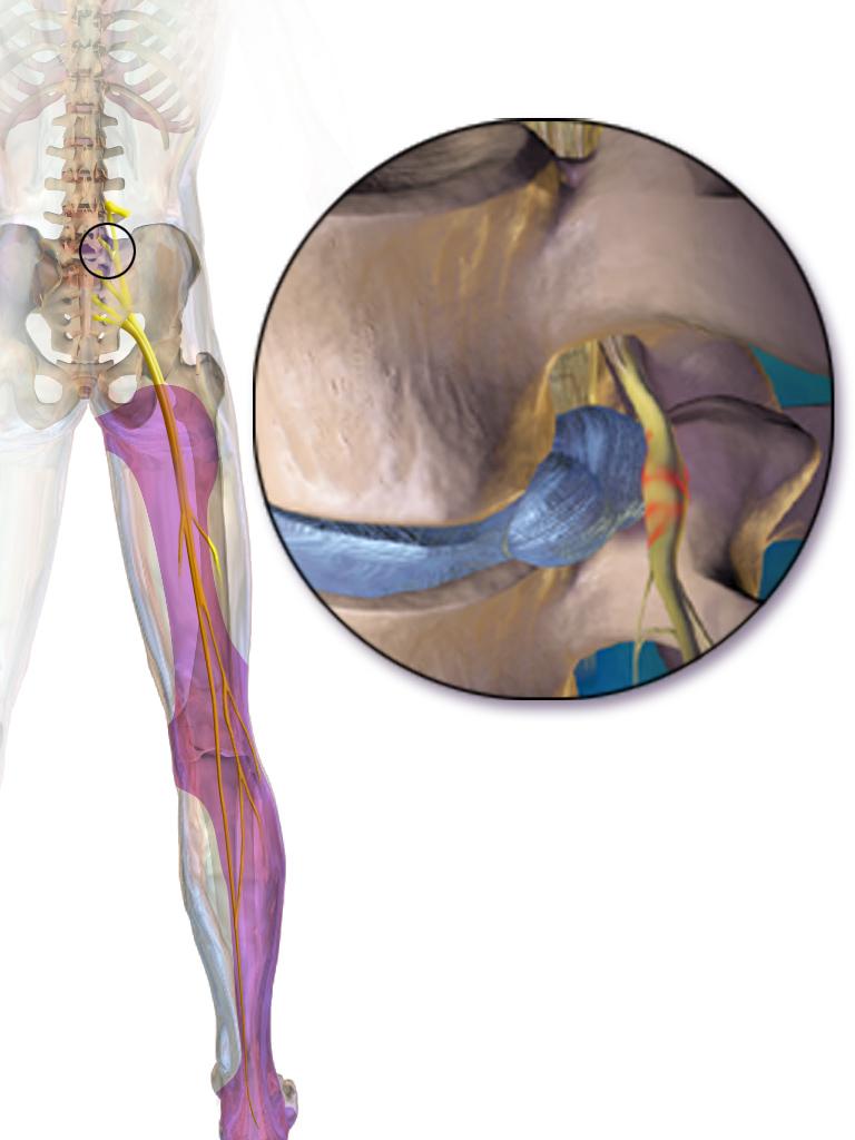 dolor irradiado pierna