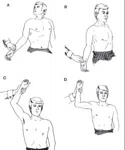 Diagnóstico del Síndrome del Desfiladero Torácico.