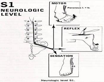 radiculopatía S1