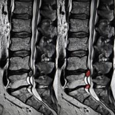 recidiva hernia discal