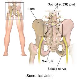 Qué es la articulación sacroilíaca y qué huesos la forman