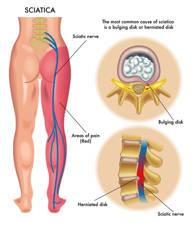 Operación de hernia discal y complicaciones