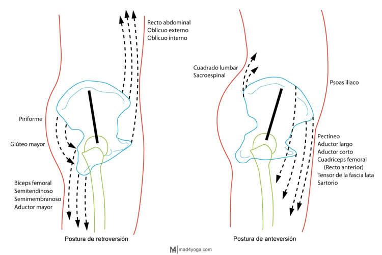 anteversion y retroversion y dolor lumbar