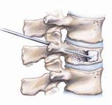 vertebroplastia con silicona